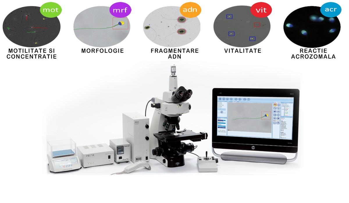 Sistem de analiza automata a lichidului seminal - C.A.S.A