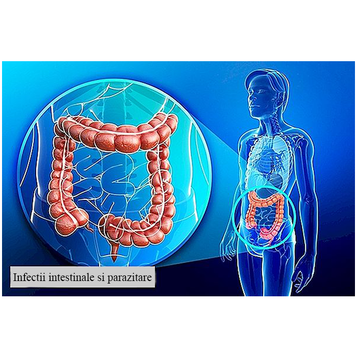 Infectii intestinale si parazitare